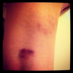 Hella bruising - this is the back of my right knee. The bright bruise is from Lyra - single leg hangs - the faint bruise at the upper right side of the photo is from learning the Jenyne Tumble (which didn't help the lower bruise)